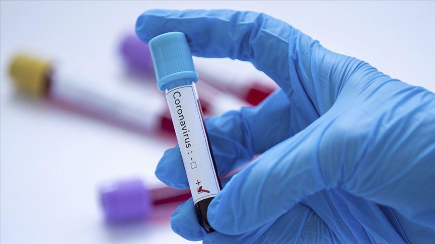 D614G mutasyonu, Kovid-19'un daha fazla insan hücresini enfekte etmesine yardım etmiş olabilir