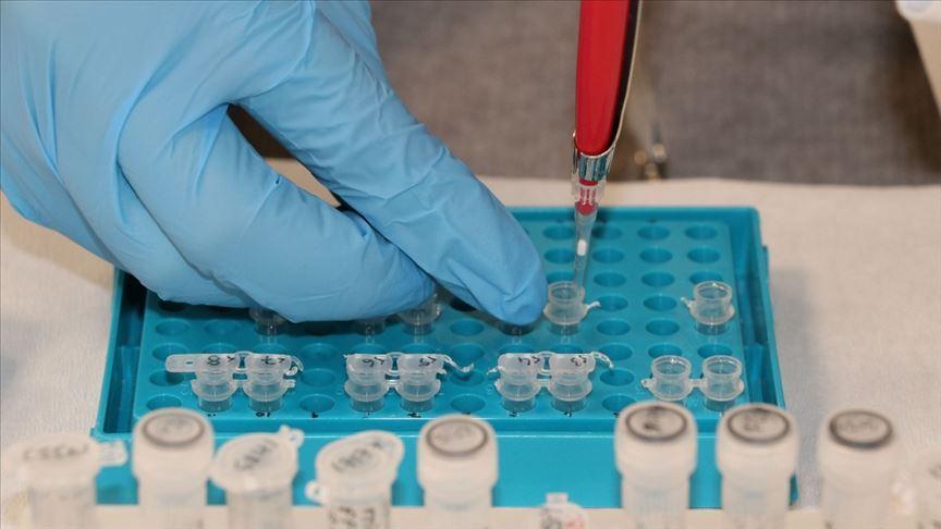 Yüksek kortizol Kovid-19 hastalarında ölüm riskini artırabilir