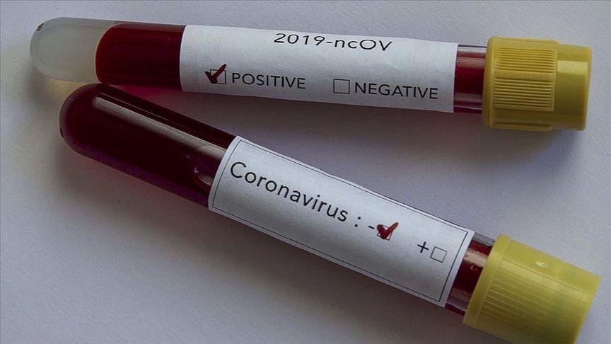 Avrupa Birliği Kovid-19 tedavisi için 'Remdesivir' alacak