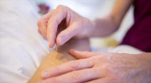Akupunktur Kovid-19'un etkilerini hafifletmede ümit vadeden bir tedavi yöntemi olabilir