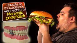 Obeziteye karşı yeni icat: Çene kilidi