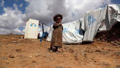 UNICEF: Yemen'de her 10 dakikada bir çocuk yetersiz beslenme ve önlenebilir hastalıklar yüzünden ölüyor