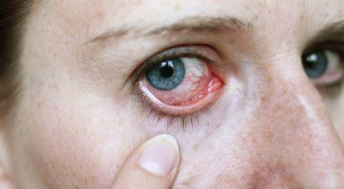 Gözdeki Kırmızılık Enfeksiyonların Nedeni Olabilir
